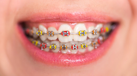 Complete Guide to Color Braces in Los Angeles, CA - Cosmetic Dentist | Smile Angels of Beverly Hills Bruce Vafa DDS.
