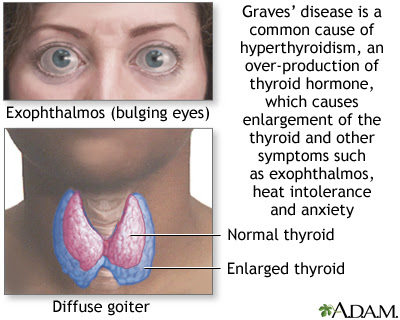 Nursing Assessment for Graves' Disease