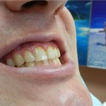 Нечищенные зубы