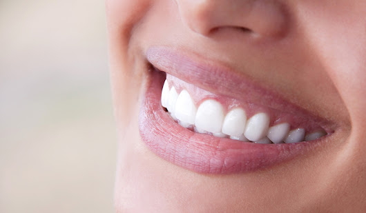 Caring For Your Porcelain Veneers