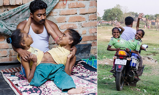 Lonely Indian conjoined twins, 45, finally find love with the same man