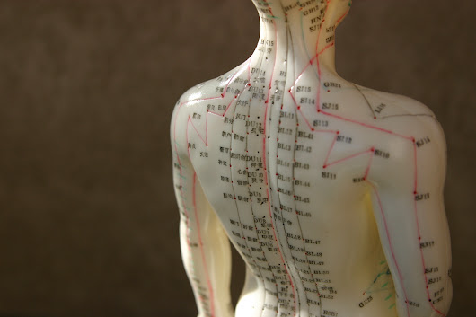 Acupuncture for headache - Harvard Health Blog