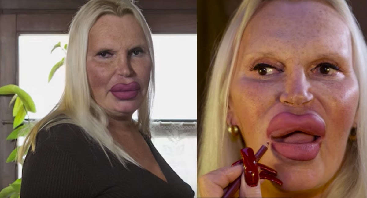 Obcecada com as cirurgias estéticas, esta mulher já gastou mais de mais de 250 mil reais