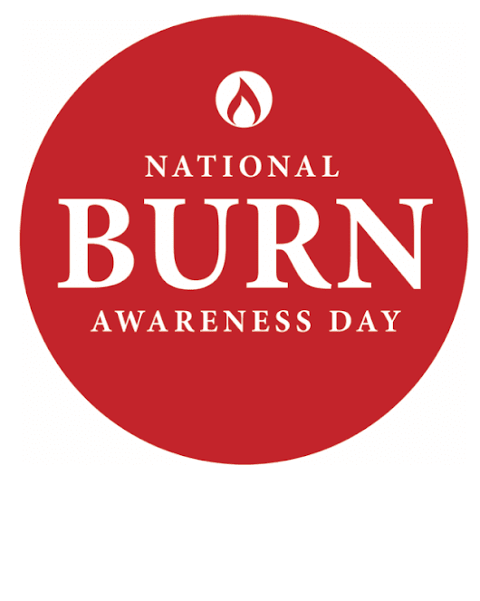Burn Awareness Day Videos: Scalp Burn Hair Replacement with CNC Hair Prosthesis #BeBurnsAware · Bauman Medical