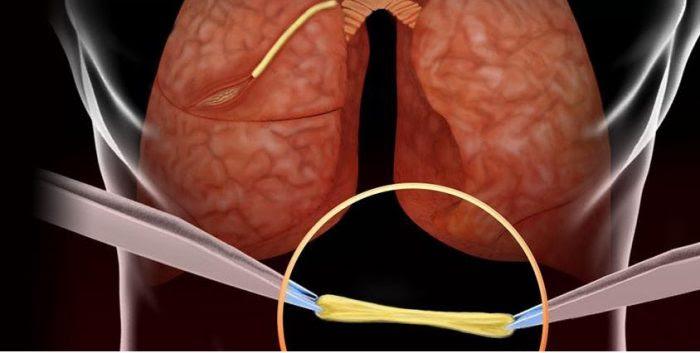 suturas sintéticas