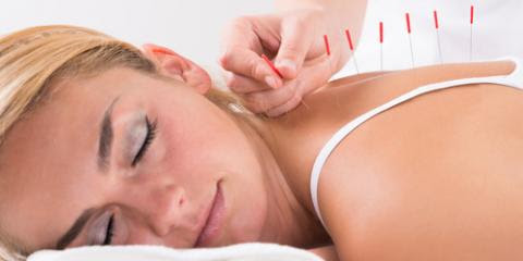 How Can Acupuncture Treat Chronic Pain? - South Reno Acupuncture - Reno Southeast