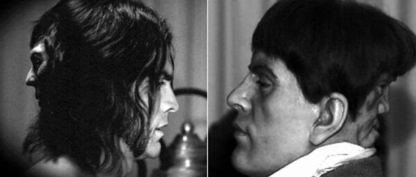 LEFT: Wes Bentley as Edward Mordrake, RIGHT: Wax recreation of the real Edward Mordake