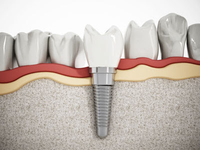 We Specialize in Placing Dental Implants