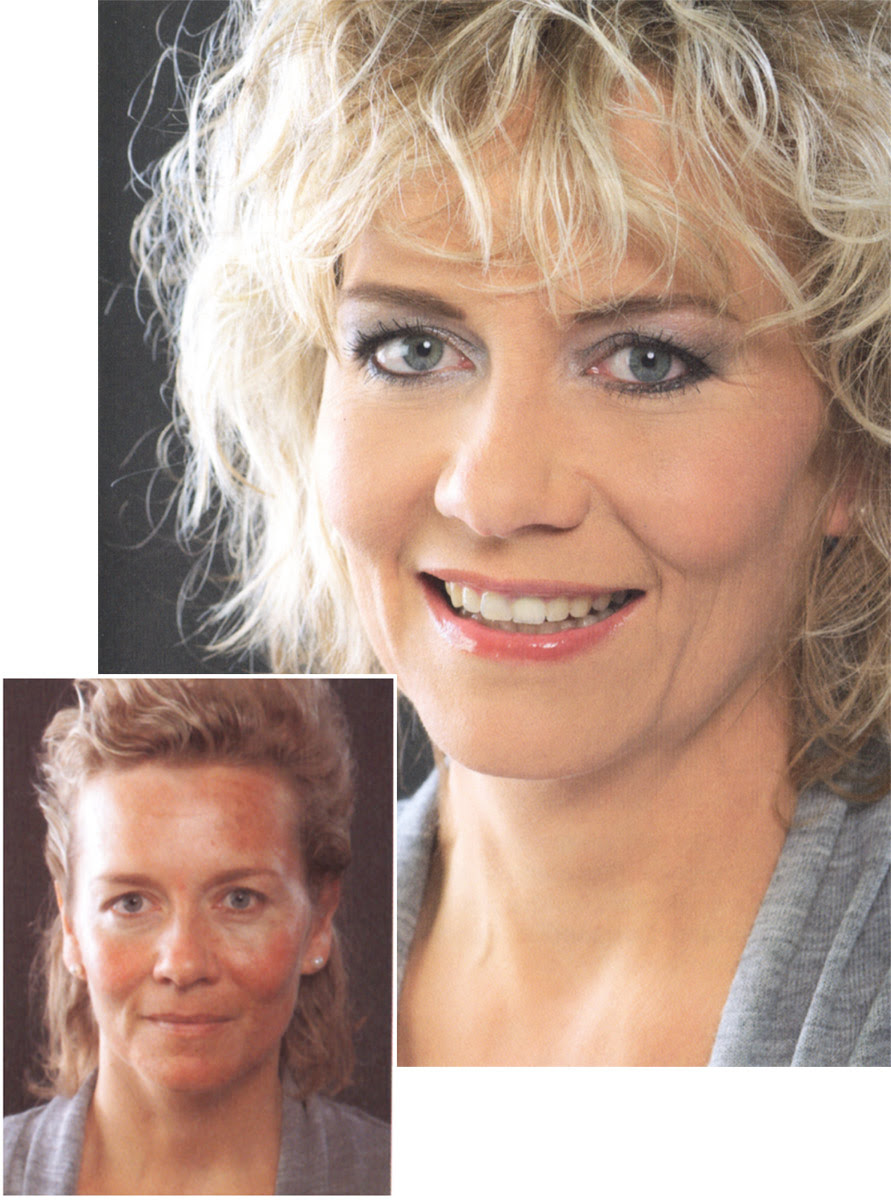 Rosacea Make Up Rötungen Abdecken Camouflage Make Up Magazin