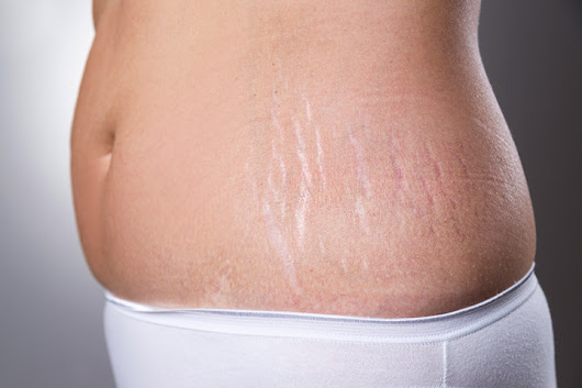 How To Remove Stretch Marks After Pregnancy: 16 Home Remedies
