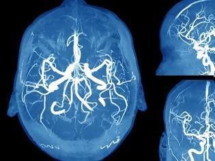 Φωτογραφία για Ανεύρυσμα εγκεφάλου: Τα συμπτώματα SOS που πρέπει να γνωρίζετε