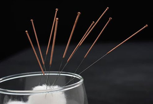 The needles used for acupuncture are quite fine and most people feel little or no pain.