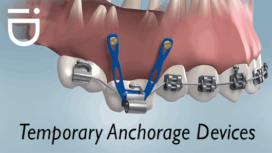 What is the Role of Temporary Anchorage Devices in Orthodontic Treatments