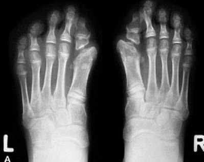Image result for fibrodysplasia ossificans progressiva