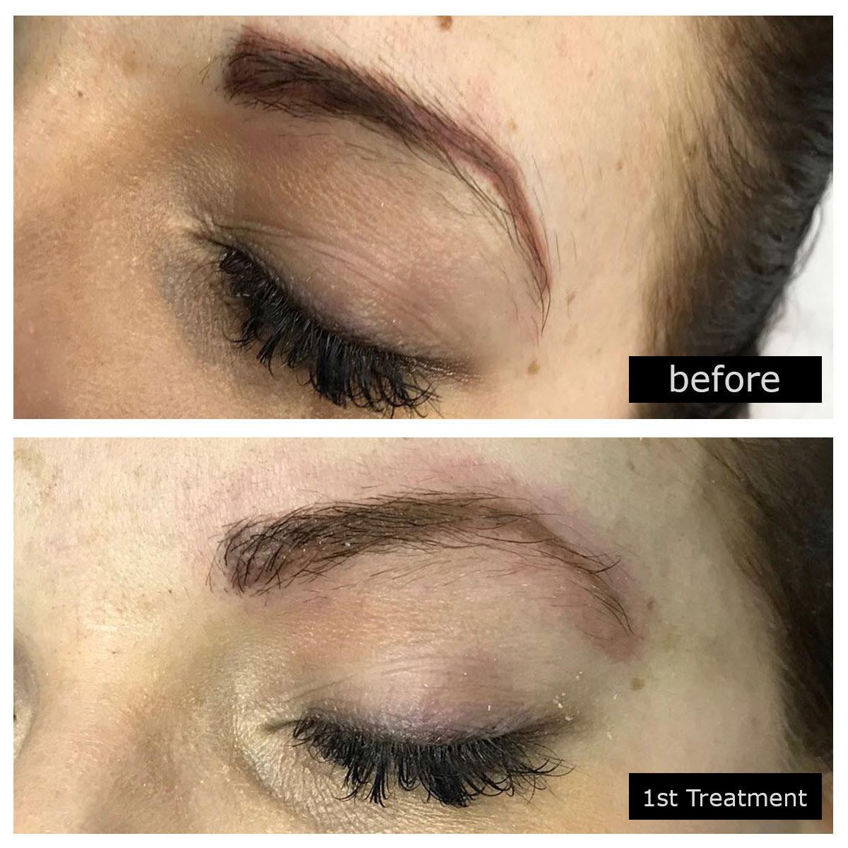 Microblading Removal Treatments In Birmingham Phiremoval