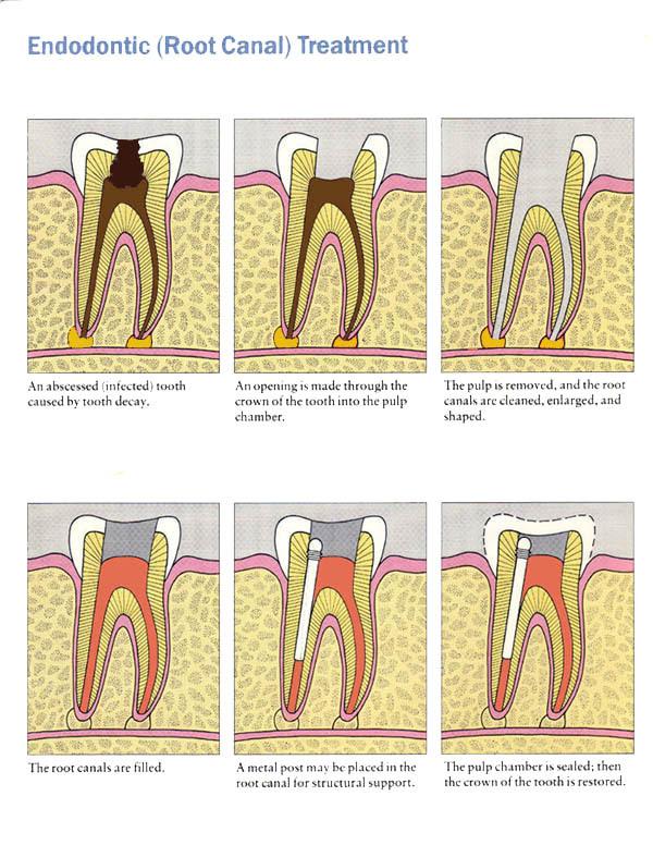 What is Endodontics? | Intelligent Dental