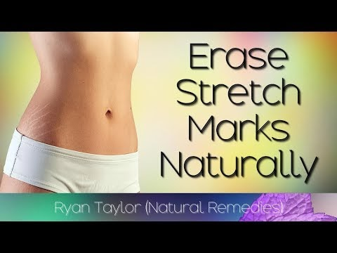 Erase Stretch Marks: in 4 Weeks (Easily)