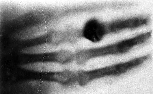 """I Have Seen My Death"": The First X-Ray Photograph"
