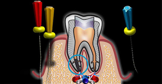 Root Canal Treatment in Coimbatore, Race Course, Ramanathapuram
