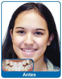 antes-e-depois-aparelho-dentario-3