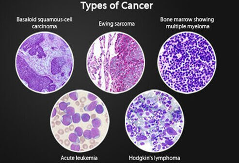 Micrographs of squamous-cell carcinoma, Ewing sarcoma, multiple myeloma, acute leukemia, and Hodgkin's lymphoma.