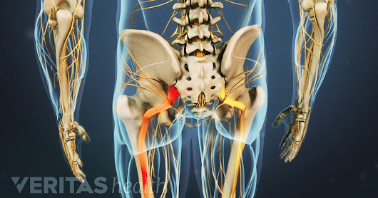 What You Need to Know About Sciatica