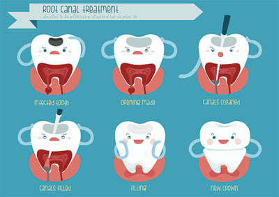Get the Facts About Root Canal Therapy