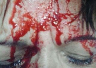 Após ser agredida com uma cadeira professora foi atendida em Pronto Socorro (Foto: G1)