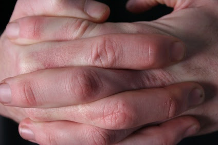 Symptoms of Raynaud's disease