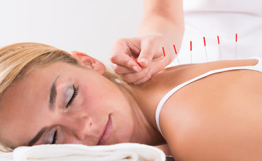 The Health Benefits Of Regular Acupuncture  | Care2 Healthy Living