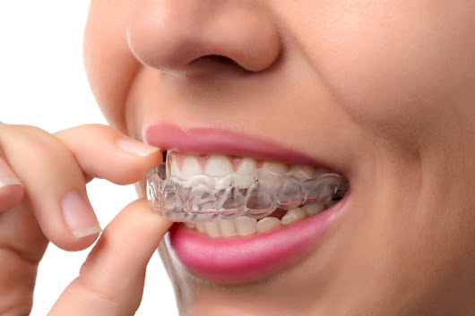 5 Advantages of Invisalign Treatment - Belmar Orthodontics