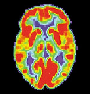 English: PET scan of a normal human brain
