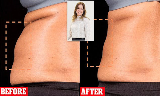 I used a flab zapper to melt away 3in of fat. Would YOU?