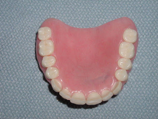 Immediate Dentures-Before & After Pictures - Dr. Paul Caputo Comprehensive Dentist Palm Harbor