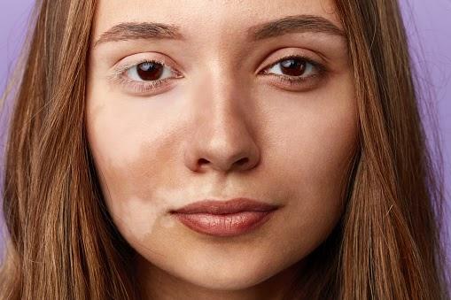 4 Natural Ways To Remove Pigmentation & Dark Spots | Fitness Yodha