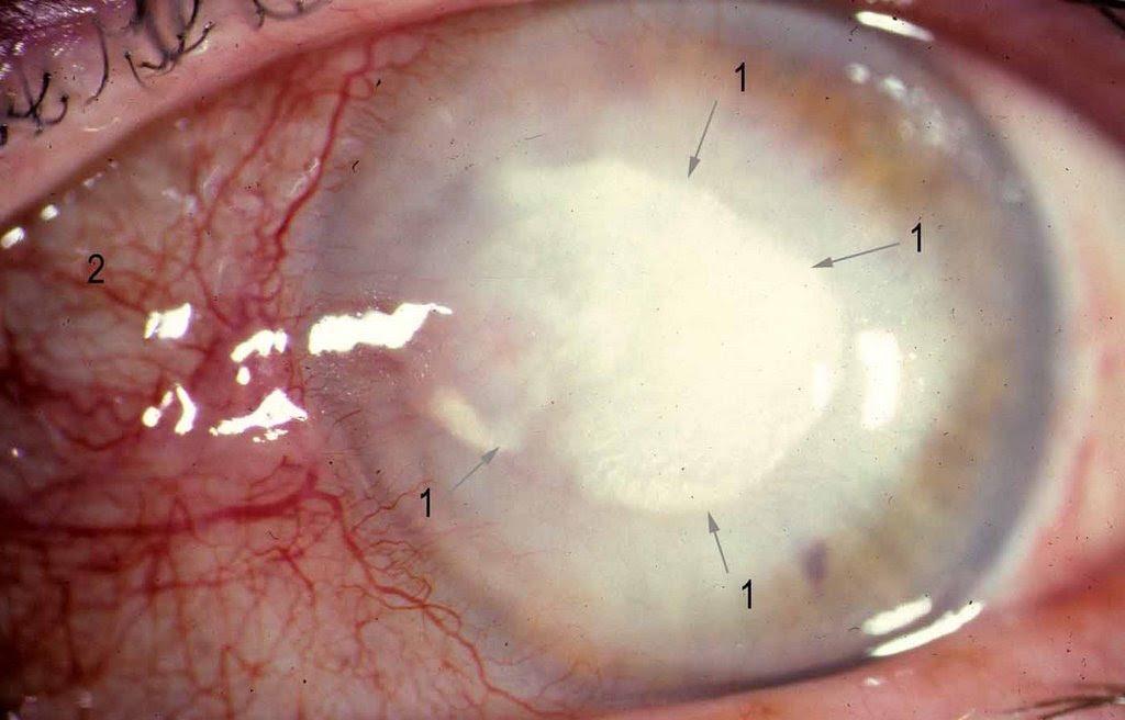 Ocular Pathology Herpes Simplex Virus Stromal Keratitis
