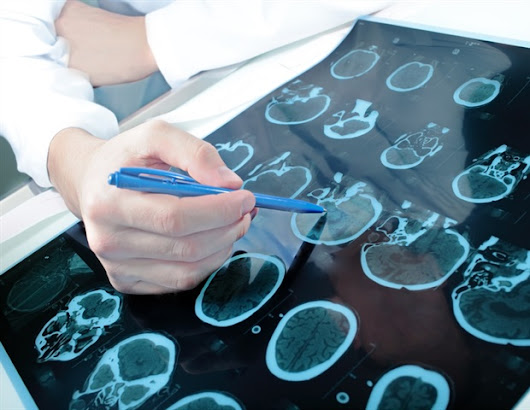 Neurologists evaluate application of smartphones in epilepsy care