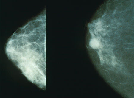 Genetic testing could improve breast cancer prevention