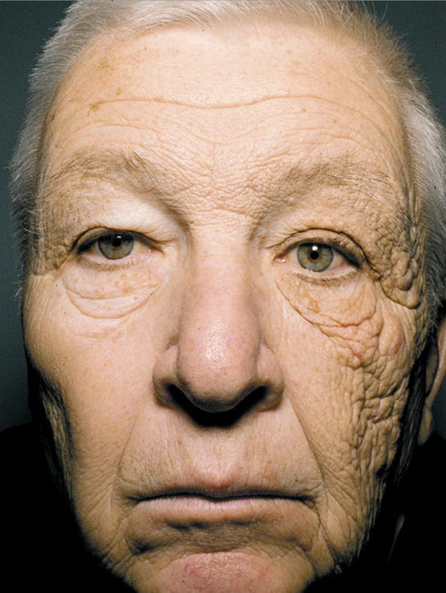 Shocking Proof That the Sun Makes You Age Prematurely