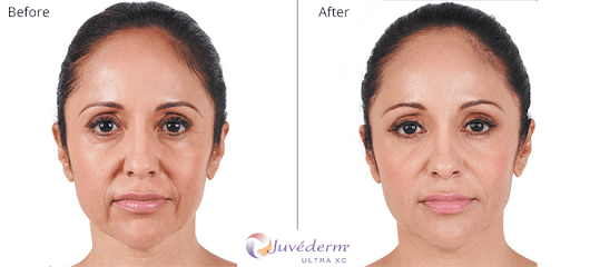Dermal Fillers - Elite Plastic Surgery