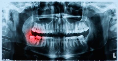 How often should I have dental x-rays taken? - Dr Chauvin