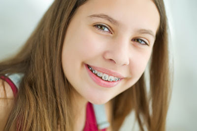 Ask a Dentist About Orthodontic Options
