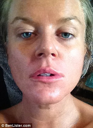 Marie Adams after having the fillers