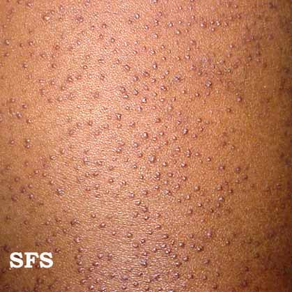 Hype Hair on Picture 1   Thickened Hair Follicles In Keratosis Pilaris