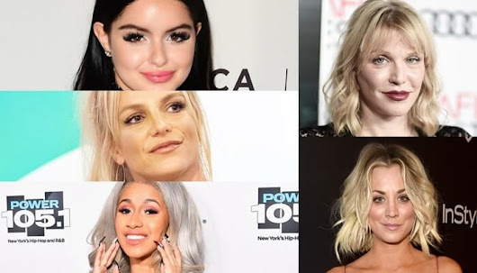 Celebrity Cosmetic Surgery Experiences: Who admits? | Flymedi