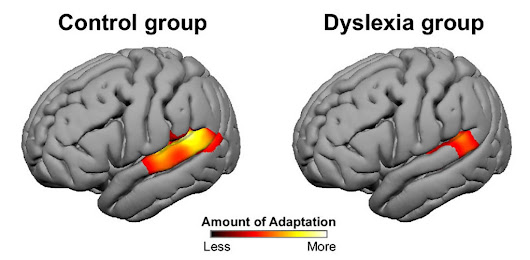 First Look: Decoding dyslexia by tracking frenetic neurons