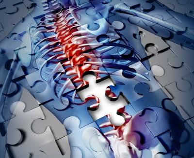 Osteoporisis Is Scurvy of the Bone, Not Calcium Deficiency