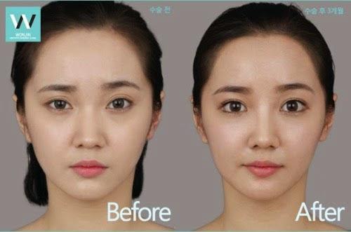 Yang namanya bedah plastik atau permak wajah menjadi barang biasa di  kalangan para artis  Wajah Cewek-Cewek Korea Sebelum dan Sesudah Dipermak