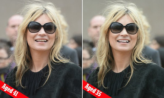 Whitened teeth makes Kate Moss look years younger