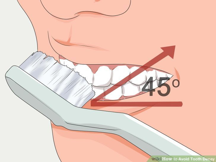 Avoid Tooth Decay Step 4 Version 2.jpg